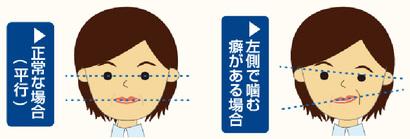 片方 頬 が 痛い 突然、片方の顎が痛みはじめた…どんな病気が考えられる?